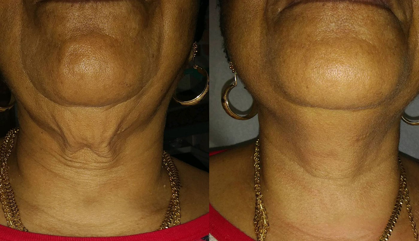 Forma Before and After Treatment
