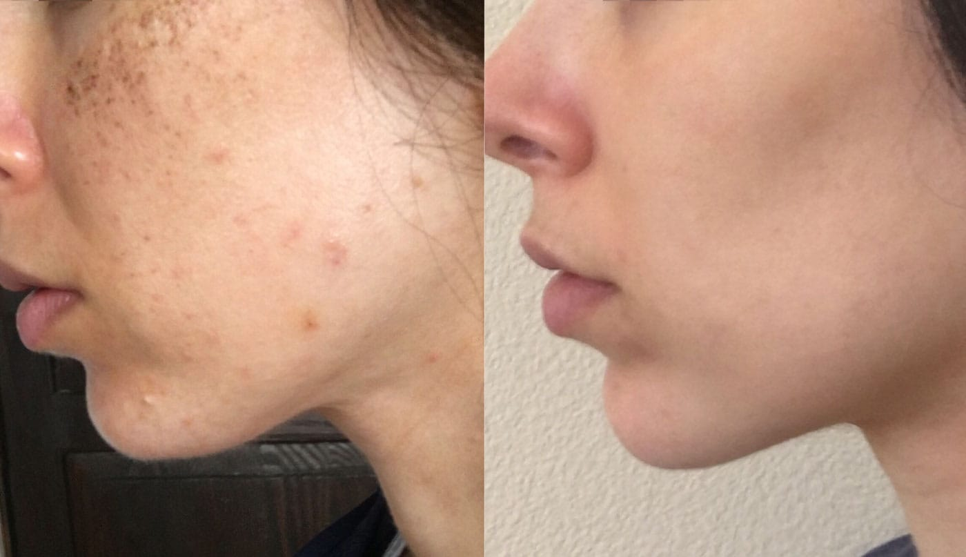IPL Before and After Treatment