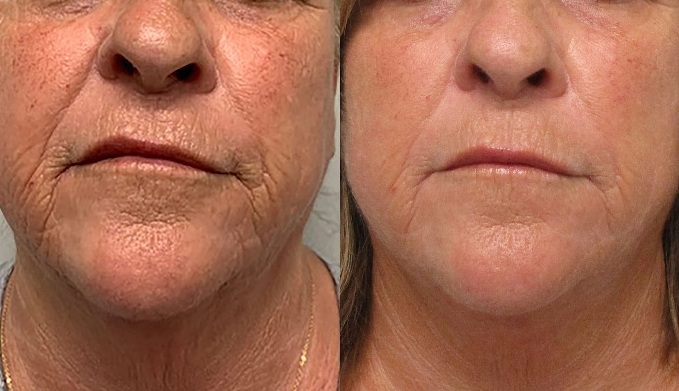 Morpheus8 Before and After Treatment